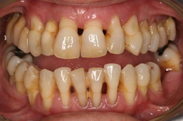 Mòn cổ răng có thật sự nguy hại?